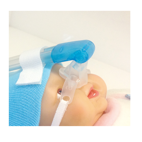 Kit de CPAP nasal.